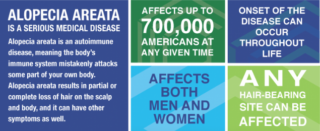 Alopecia Areata Infographic