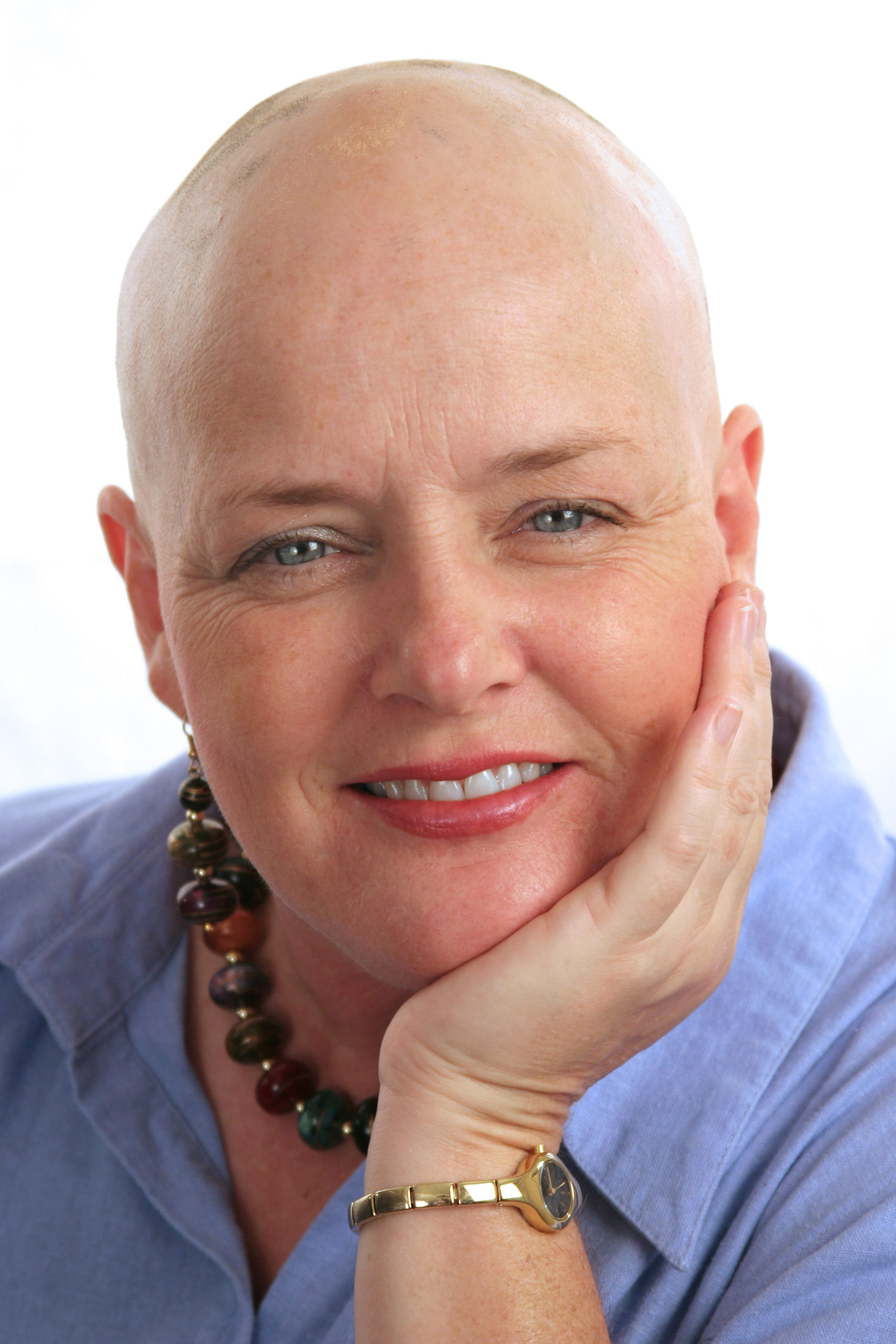 A portrait of a beautiful woman undergoing a health challenge with a positive attitude.